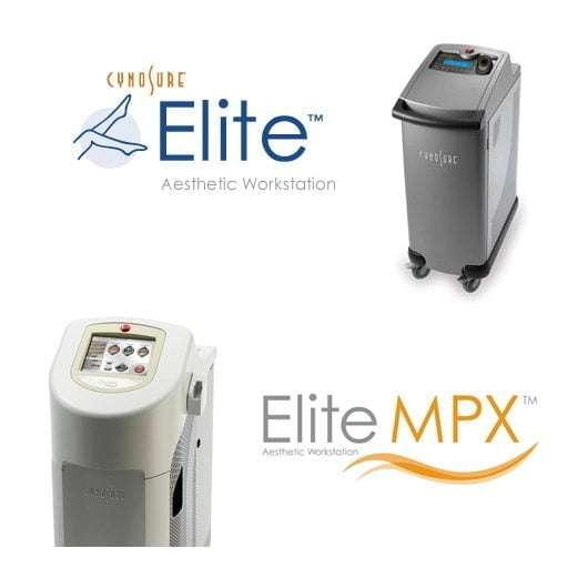 cynosure elite - laser épilatoire