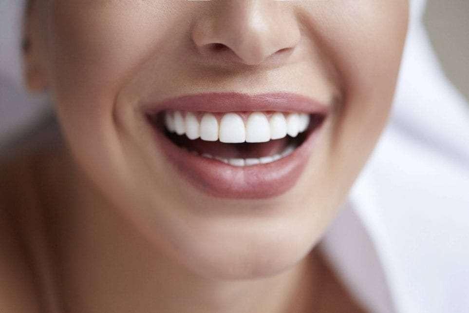 Les facettes dentaires