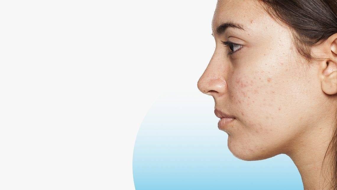 Les cicatrices : Que peut on faire contre ces marques disgracieuses?