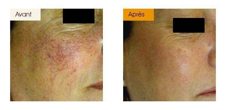 Traitement des varicosités avant et après 1